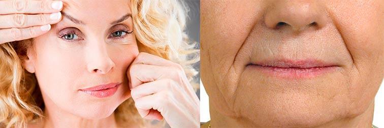 О чем могут рассказать морщины на лице