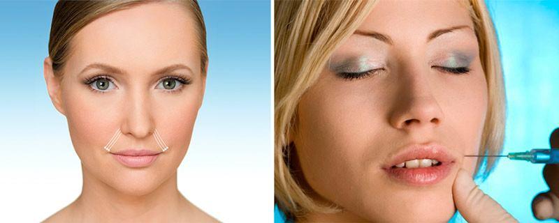 Салонные процедуры от носогубных морщин