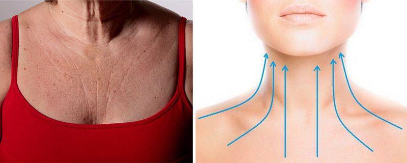 Морщины в зоне декольте и на шее