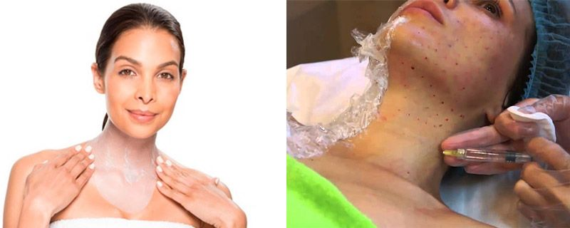 Процедуры от морщин на шее