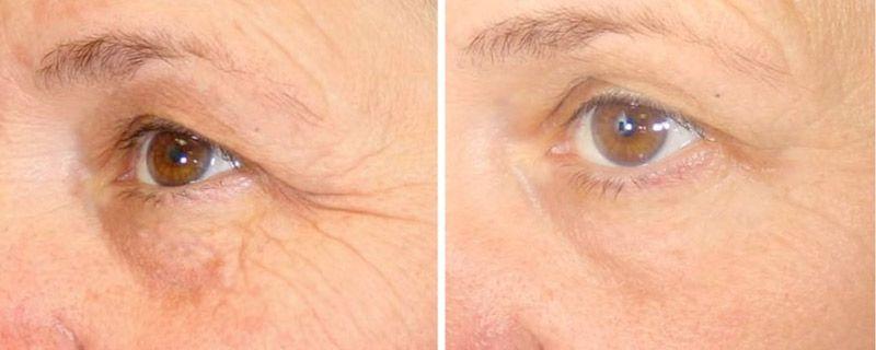 Убрать гусиные лапки вокруг глаз