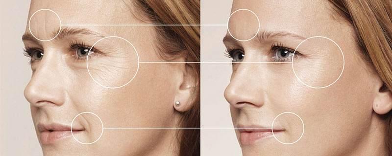 Результат использования маски с крахмалом против морщин