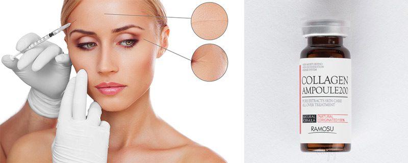 Инъекции от морщин на лице