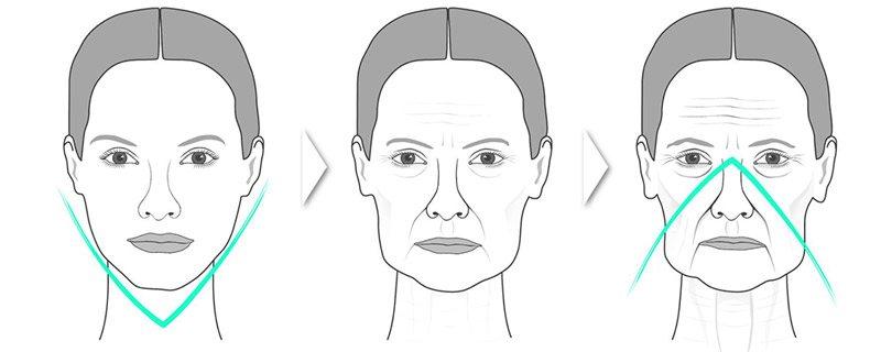 Появление морщин на лице