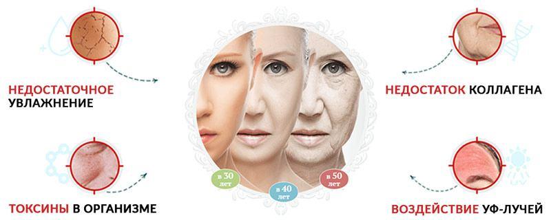 Причины морщин на коже