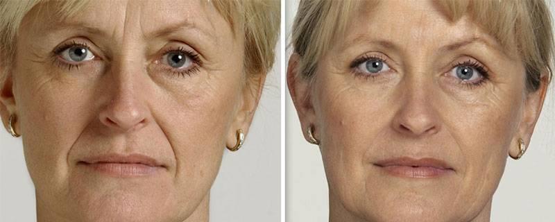 Ботокс для лица от морщин: особенности проведения процедуры, общие рекомендации