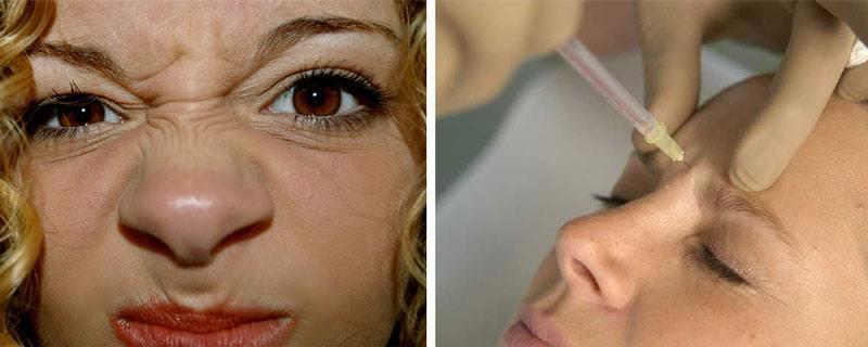 Методы избавления от морщин на переносице