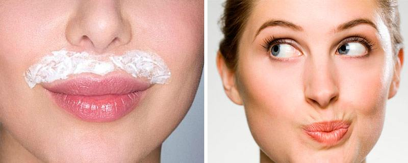 Упражнения для губ помогают